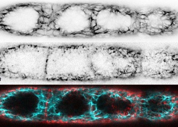 cell micropatterning square HaCaTB10 keratin 5 phalloidin integrin beta4